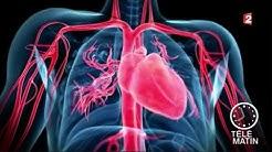 Santé - Crise cardiaque : les idées reçues