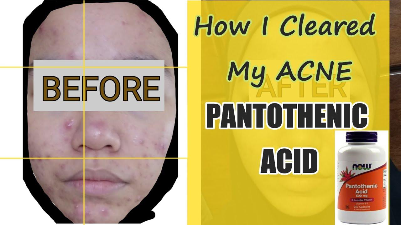 How I Cleared My Acne Pantothenic Acid Nurliyana Shahar Youtube