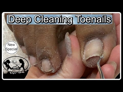 👣 Pedicure Deep Toe Nails Cleaning at Home 👣