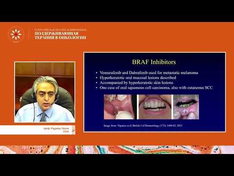 Осложнения со стороны полости рта при проведении противоопухолевой терапии