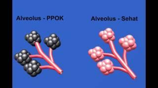 ZULLIES CLASSROOM : Mengenal Penyakit Paru Obstruksi Kronis (PPOK) atau CPOD dan terapinya.