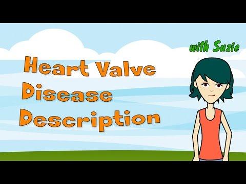 heart-valve-disease-description