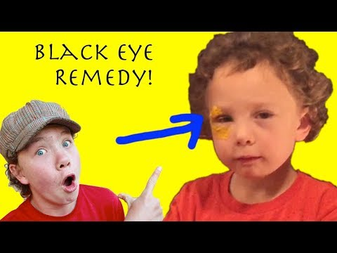 A Remedy for Bruising, Black Eyes, and Swelling (Natural, Quick, Effective)