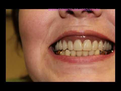 Имплантация при полном отсутствии зубов. Верхняя челюсть. Установка 6 ICX-templant.