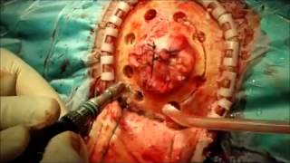Трепанация черепа  Резекция опухоли теменной кости операция