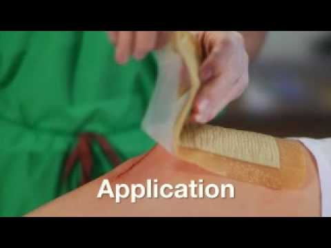 Aquacel Ag Surgical Application Mp4 Youtube