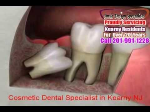 Cosmetic Dental Specialist in Kearny NJ-Smile Design Specialist-Call 201-991-1228