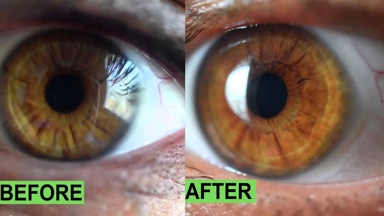 How To Make Eye Color Change Naturally