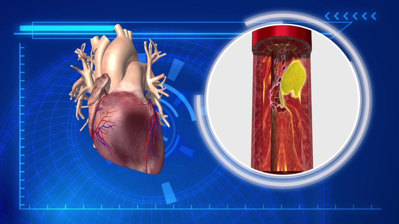 Symptoms of a silent heart attack - YouTube