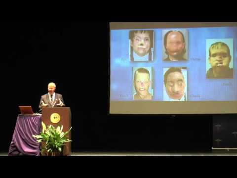 "Brandeis GYS Dr. Pomahac ""Facial Restoration by Transplantation"" Part 3"