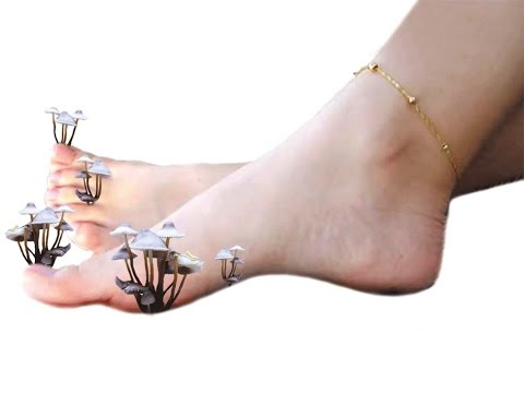 Масло чайного дерева от грибка ногтей на ногах: отзывы