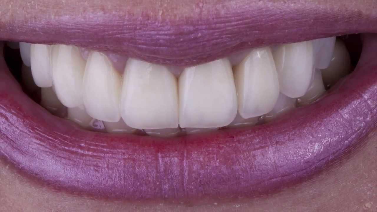 Mudanca Extrema Do Sorriso Facetas Em Porcelana E Facetas Em Resina