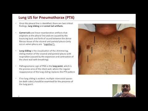 Pulmonary Ultrasound for Pneumothorax Evaluation