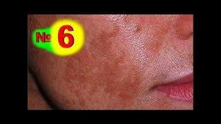 видео Пигментные пятна на теле: 6 причин, 4 метода лечения, профилактика