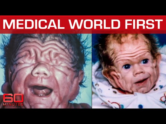 World first: Born with enough skin for a five-year-old child | 60 Minutes Australia