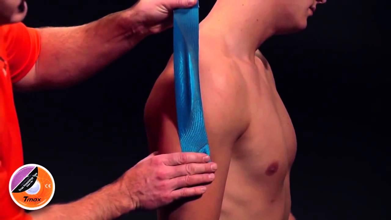 Как клеить тейп на плечевой сустав нижнечелюстной сустав болит
