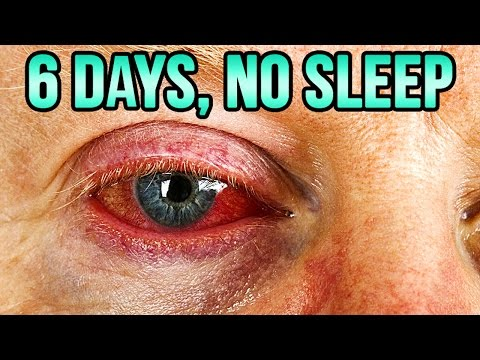 6 Days With No Sleep - What Happens to Your Body and Mind?