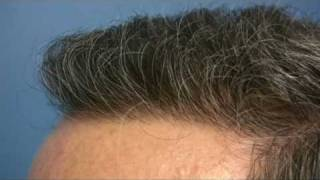 Hair Transplant by Dr Hasson - 3445 grafts - 1 Session