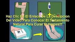 como curar el herpes con remedios caseros