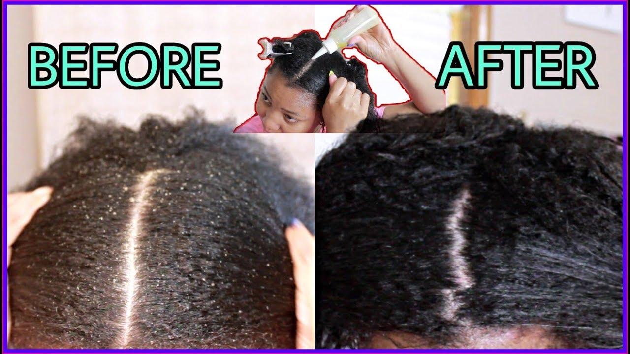 dry scalp help
