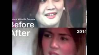 Deniece Denise Cornejo and Cedric Lee is leaving the Philippines according to Vhong Navarr