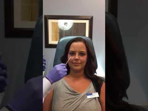 Facebook Feature Part II: Lower Eyelid Fillers