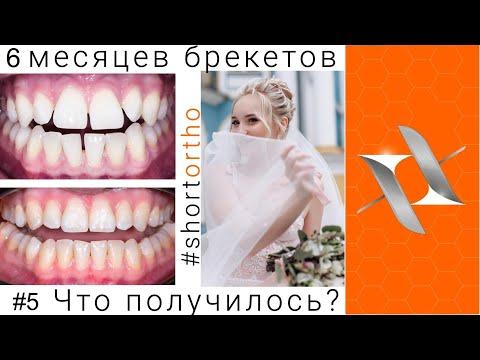 Ортодонтическое лечение на брекетах за 6 месяцев?! До и после. #shortortho