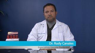 Varicosas venas de síntomas uterinas las