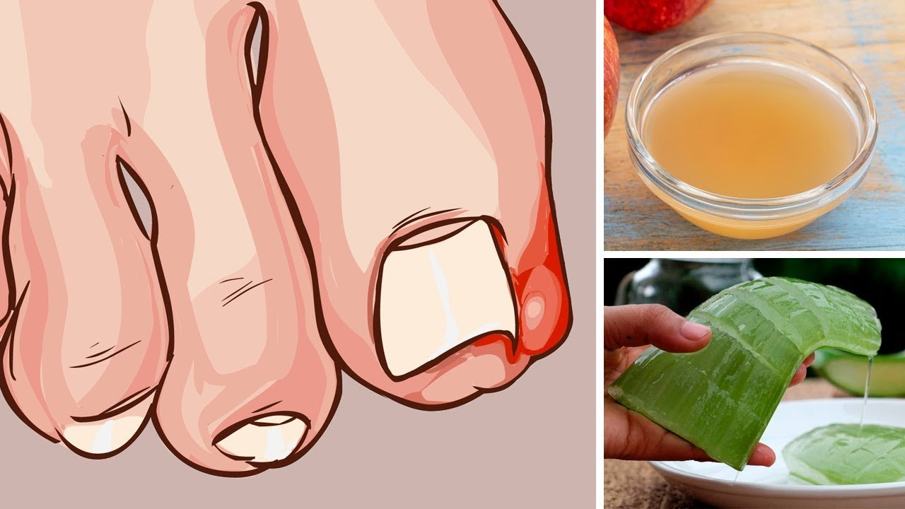 5 Home Remedies for Ingrown Toenails That Really Work