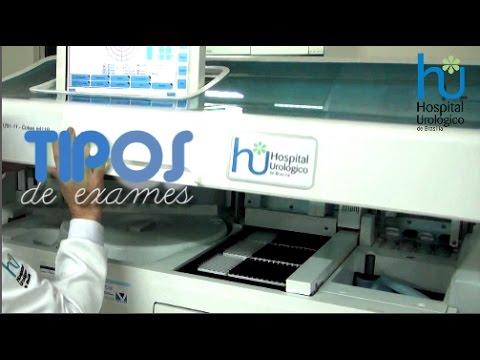 Vídeo Tipos de exame de urina