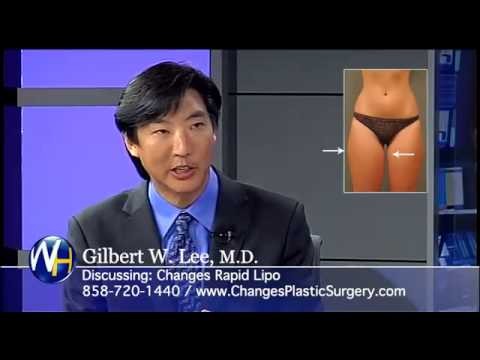 Liposuction with San Diego, CA Plastic Surgeon, Gilbert Lee, M D  1