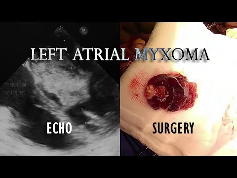left-atrial-myxoma:-echo-and-operative-video