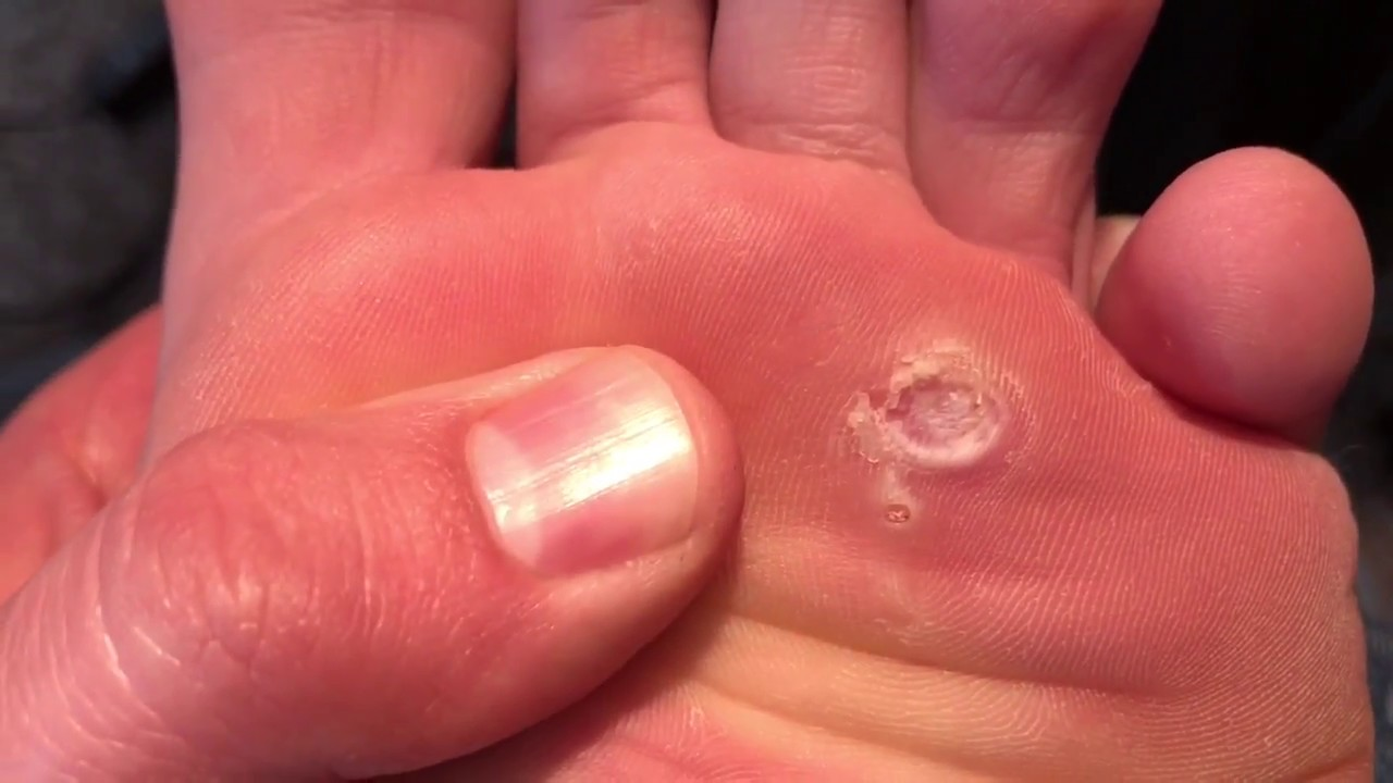 day 66 cutting out my plantar wart is it gone yet youtube