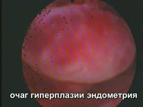 Железистая гиперплазия эндометрия: что это? Лечение