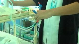 Tecnica de dialisis peritoneal 2° etapa Conexion