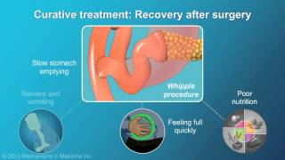 This animation focuses on two approaches in the treatment of pancreatic cancer: curative and non-curative (palliative), as well its long-term outcomes. to...