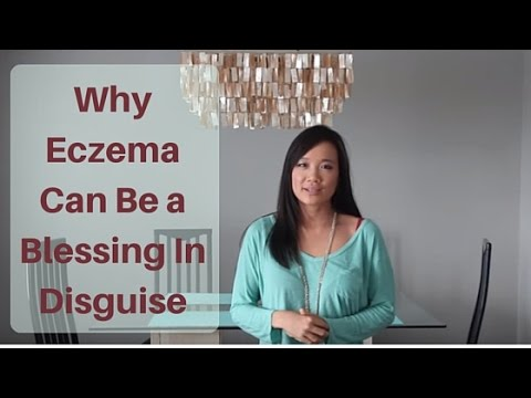 Why Eczema can be a Blessing in Disguise