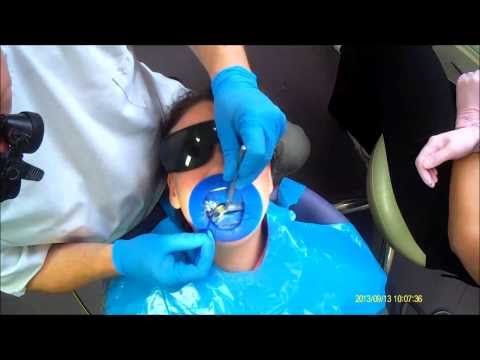 Drill-free Pain-free Dentistry