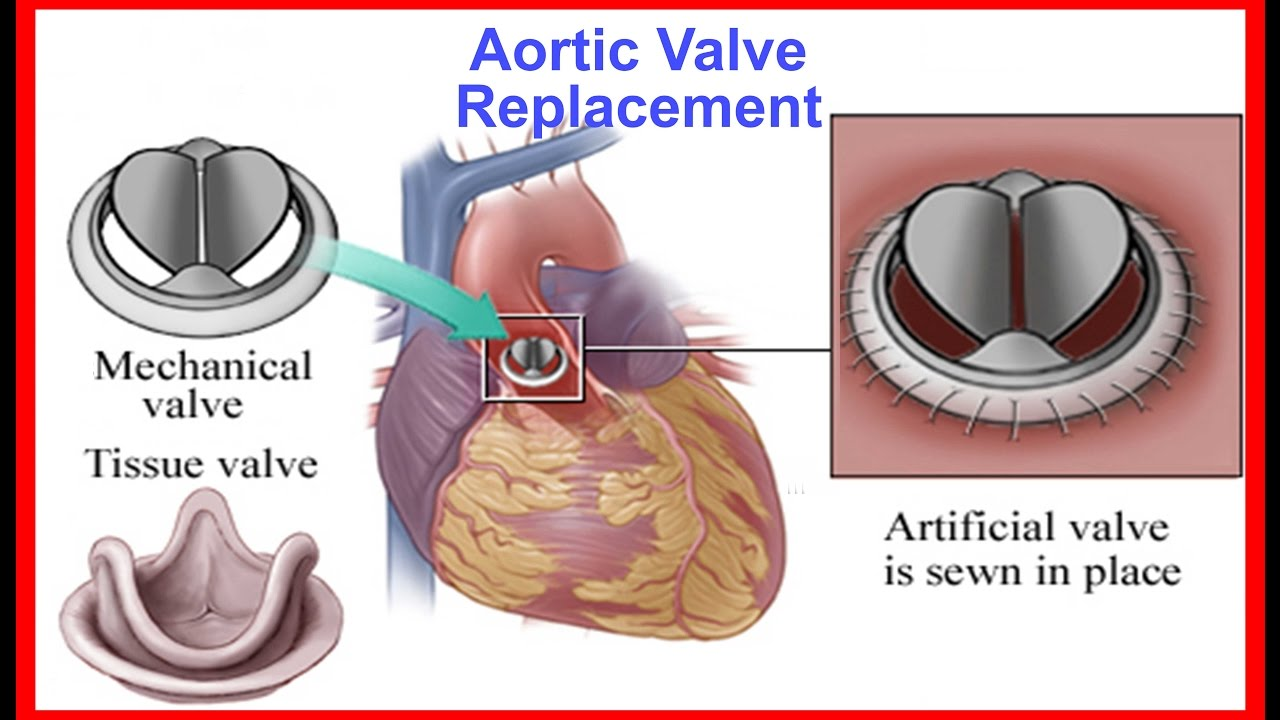 Minimal Invasive aortic valve replacement by Dr Yugal Mishra Fortis ...