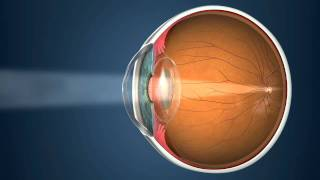 Revitalvision after Cataract Surgery