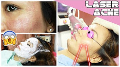 hqdefault - Acne Scar Removal Laser Philippines
