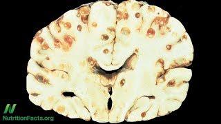 Tasemnice v mozku