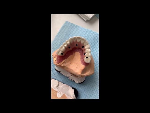 Mosty porcelanowe na 6 implantach - stała proteza - łuk zębowy.