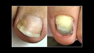 INSANE PEDICURE TRANSFORMATIONS