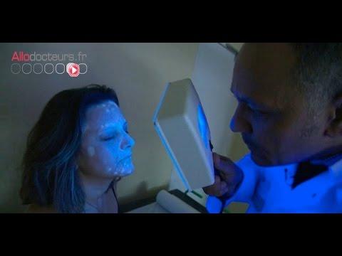 Vitiligo, quand la peau perd sa couleur - Le Magazine de la santé