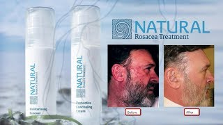 All Natural Rosacea Treatment Youtube - 2017 Rating ★★★★ Fast Effective Natural Rosacea Treatment