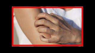 A quoi sont dues les démangeaisons de la peau ?