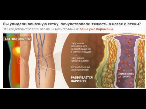 Йодовая сетка от варикоза - эффект, противопоказания