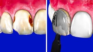 COMMON DENTAL PROCEDURES FOR Y…