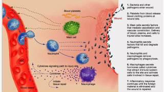 INFLAMMATION INFECTION CONTROL HEALTH EDUCATION ICSP 94 URDU / HINDI